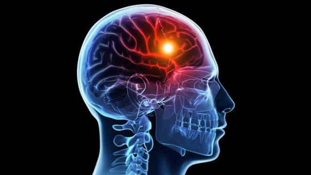 Mituri despre accidentele vasculare cerebrale