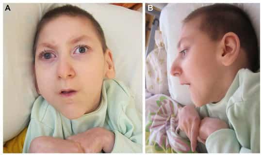 Tot ce trebuie stiut despre sindromul Aicardi 1