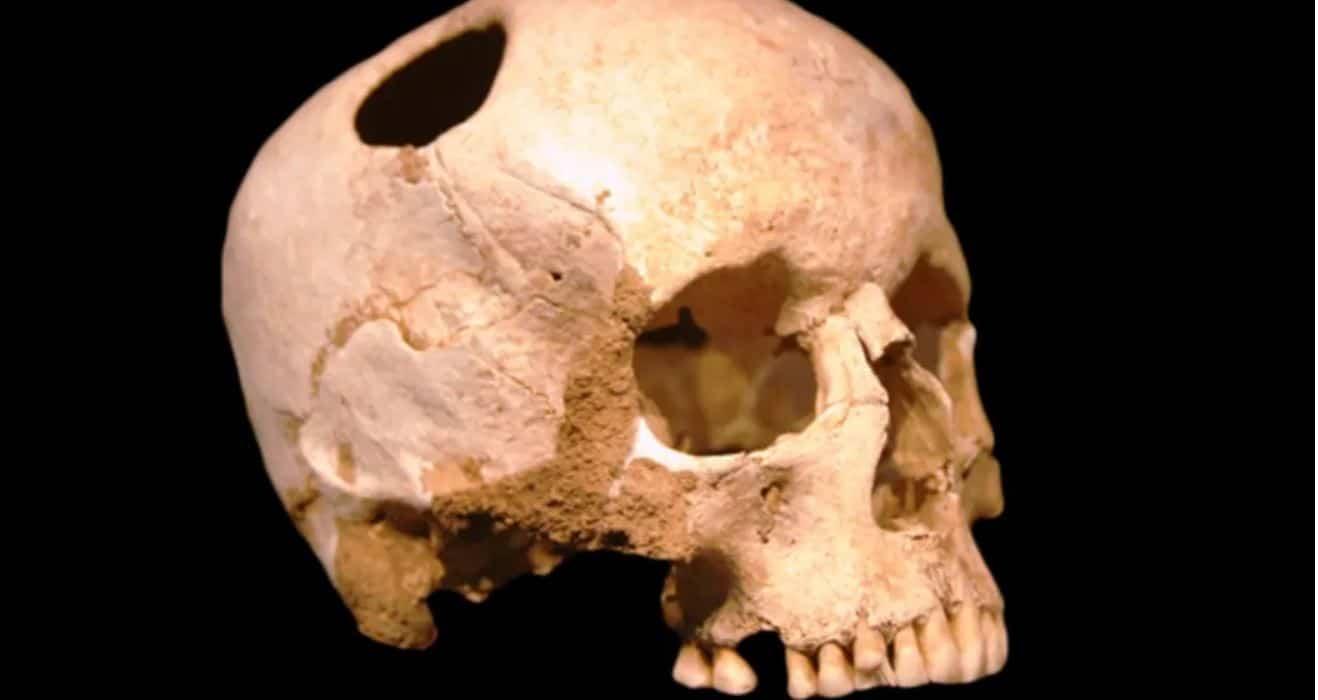 Trepanația: istorie și origini 1