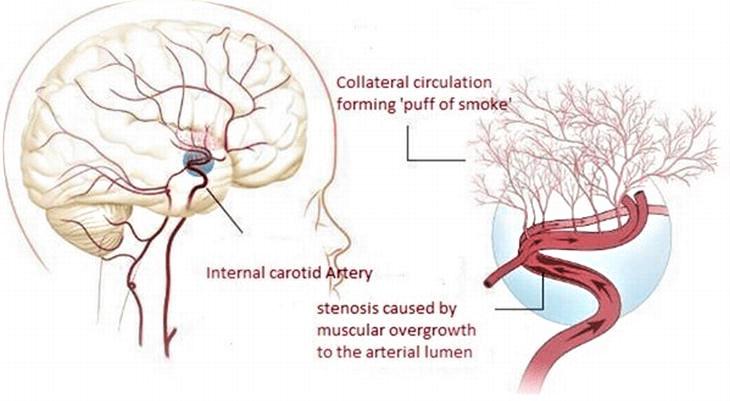 Boala MoyaMoya: cauze, simptome, tratament 1