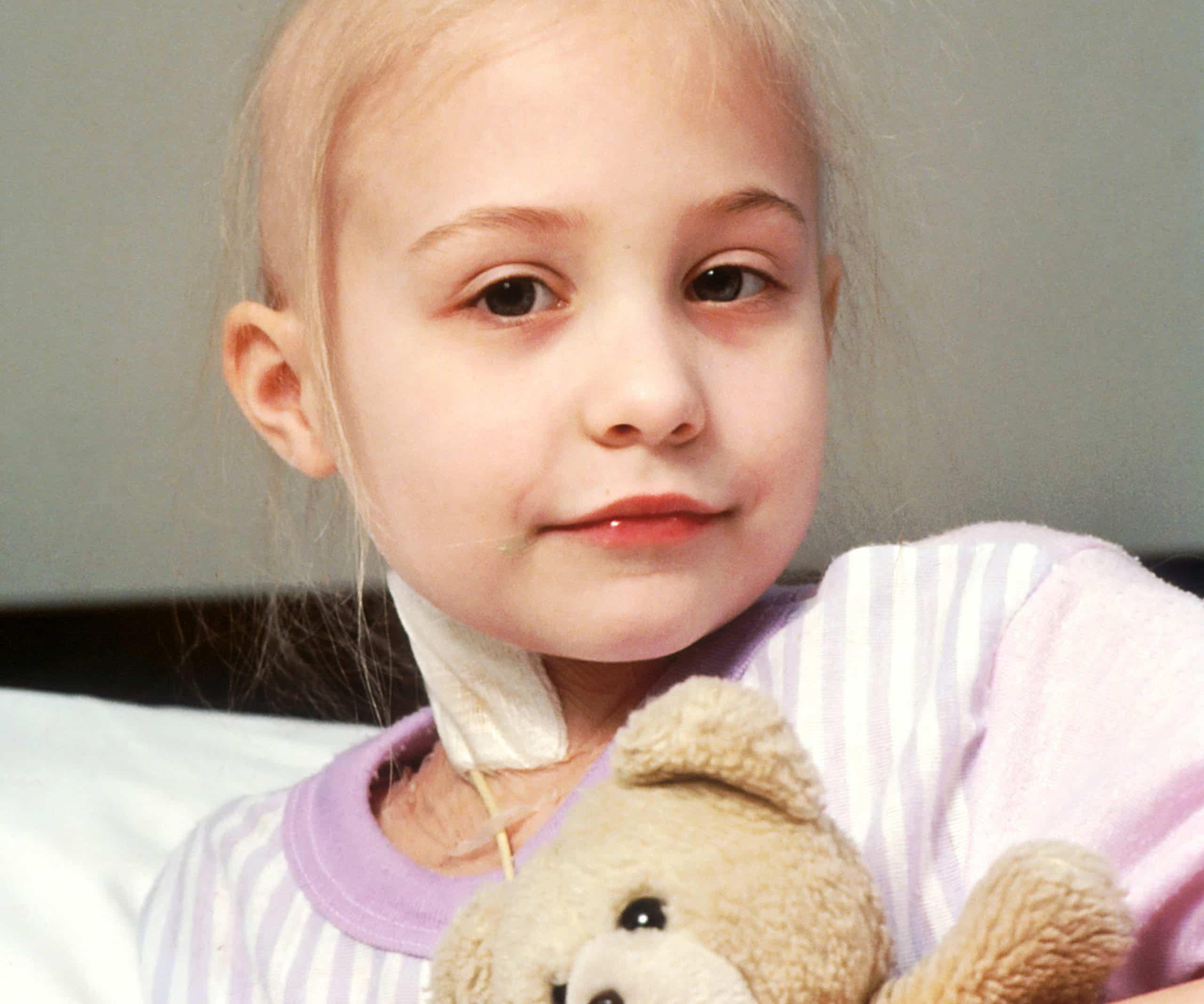 Photo of Căderea părului la copii – cauze și tratament